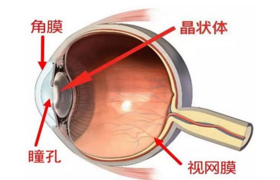 返老还童?眼睛不花了小心白内障!龙岩华厦眼科医院白内障专家来支招